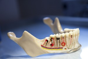 Best Budapest Dentist - Root canal treatment